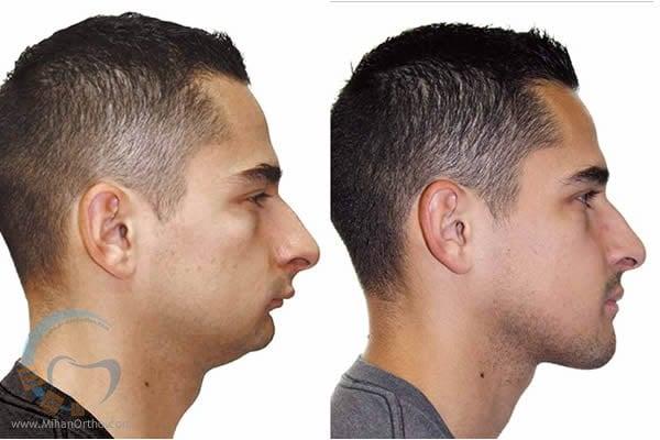 ارتودنسی-ترتیب ارتودنسی و جراحی بینی