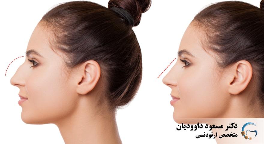 ارتودنسی-جراحی زیبایی بینی