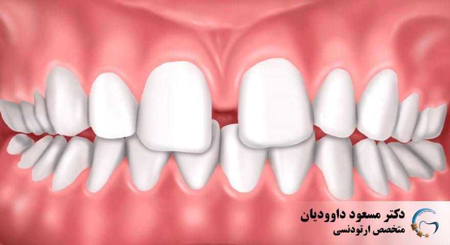 ارتودنسی-دندانهای فاصله دار