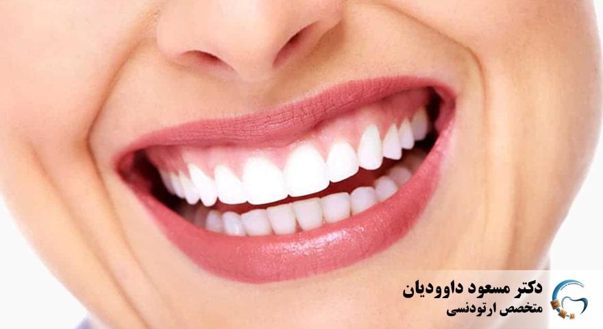 لبخند لثه ای