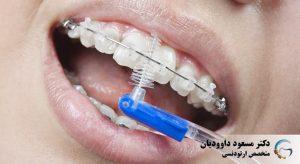 ارتودنسی-مسواک بین دندانی