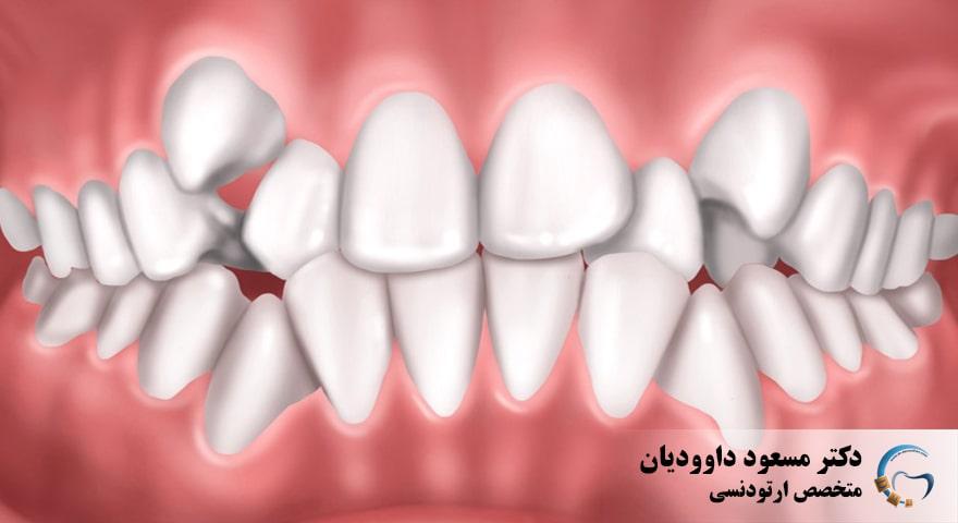 ارتودنسی-نامرتبی دندان ها
