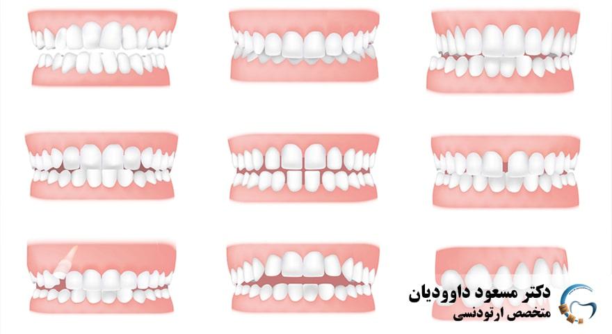 ارتودنسی-نامرتبی دندان