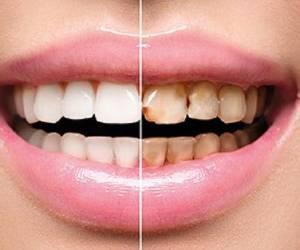[تصویر:  -دندان-min.jpg]