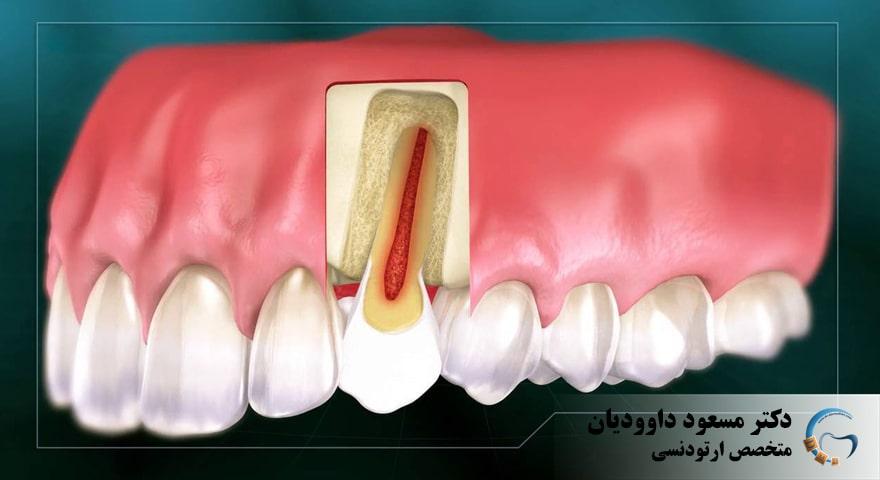ارتودنسی-ارتودنسی دندان عصب کشی شده