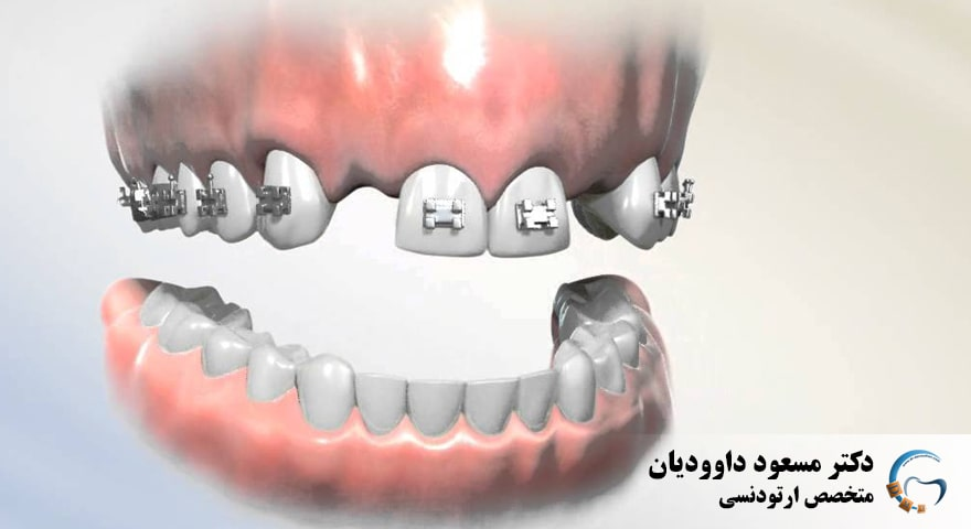 ارتودنسی-دندان های غایب