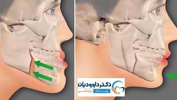 جراحی فک و ارتودنسی