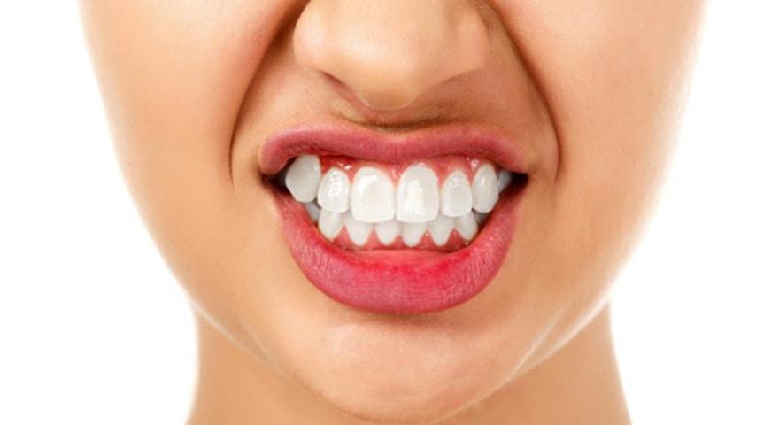 ارتودنسی-دندان قروچه و ارتودنسی