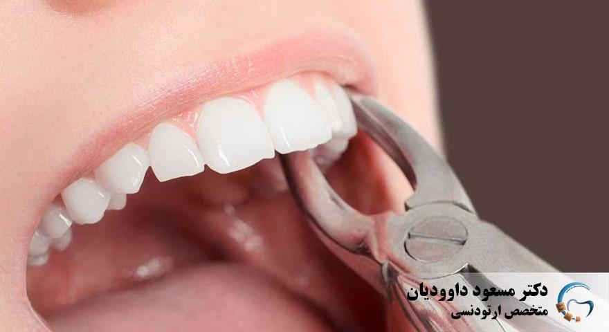 ارتودنسی-ارتودنسی با کشیدن دندان
