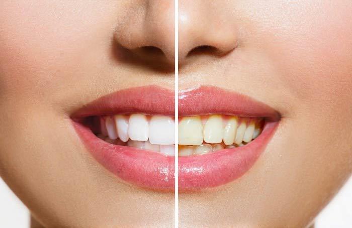 ارتودنسی-سفید کردن دندان و ارتودنسی