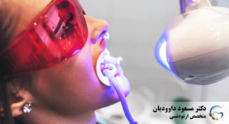 ارتودنسی-سفید کردن دندان
