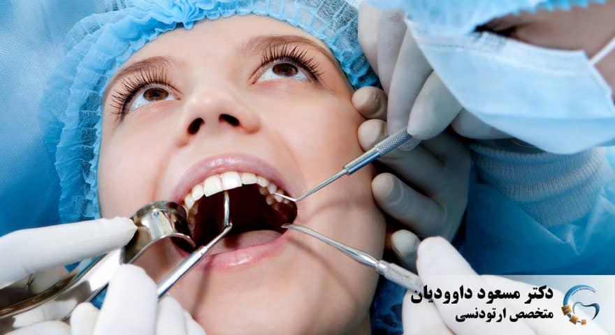ارتودنسی-ارتودنسی دو دندان جلو