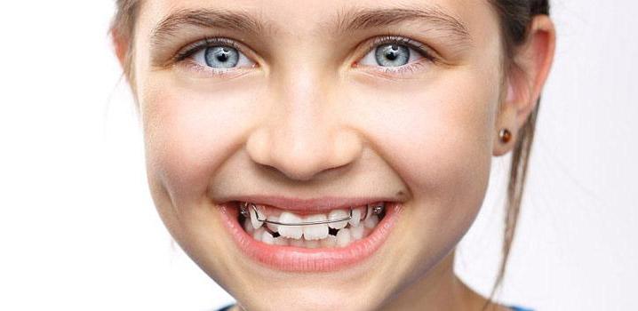 ارتودنسی-ارتودنسی دندان کودکان