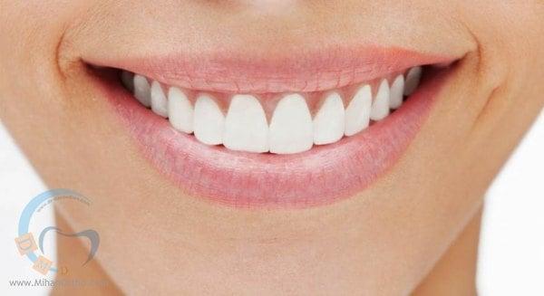 طرح لبخند-لمینت دندان