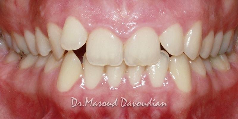 ارتودنسی-کیس 3 نامرتبی کم دندان قبل