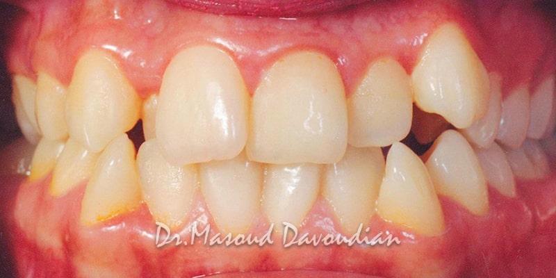ارتودنسی-نامرتبی دندانی شدید، کیس 5