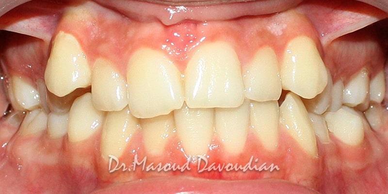 ارتودنسی-نامرتبی دندانی شدید، کیس ۶