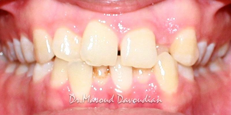 ارتودنسی-کیس 1 نامرتبی کم دندان