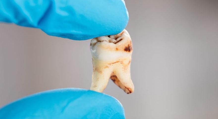 ارتودنسی-پوسیدگی دندان