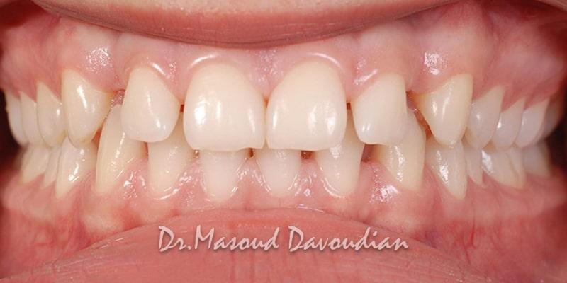 ارتودنسی-دندان های فاصله دار قبل، کیس ۱