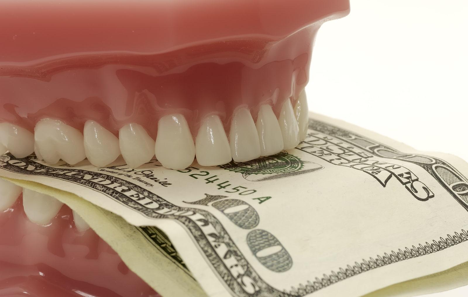 ارتودنسی-دندان نیش نهفته