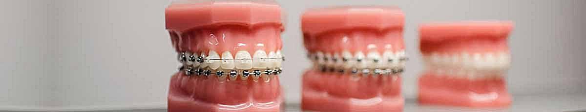 ارتودنسی-ارتودنسی یک دندان