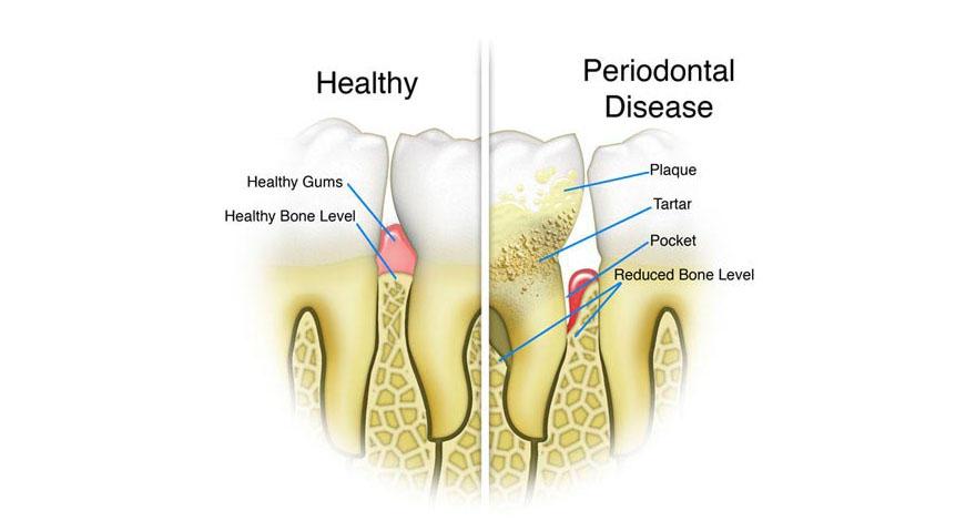 ارتودنسی-بیماری پریودنتال یا بیماری لثه