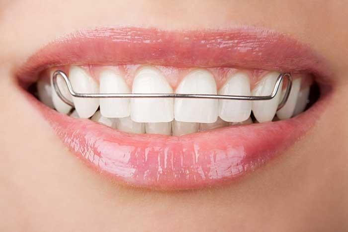 [تصویر:  photodune-2083719-teeth-with-retainer-_2..._1-min.jpg]