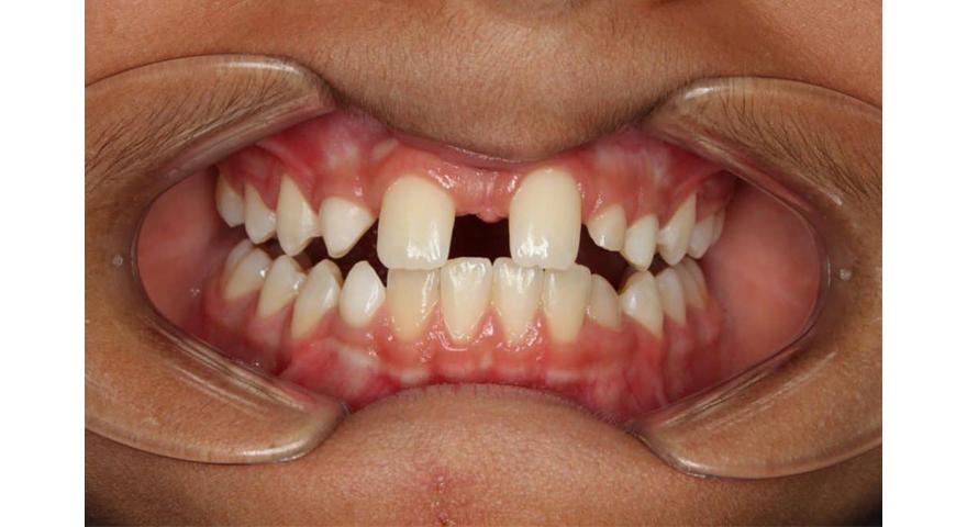 ارتودنسی-دیسپلازی دندانی و ارتودنسی