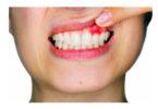 ارتودنسی-عفونت دندان و ارتودنسی
