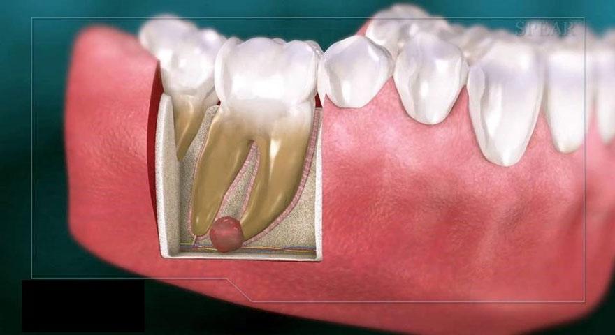 ارتودنسی-کیست دندان