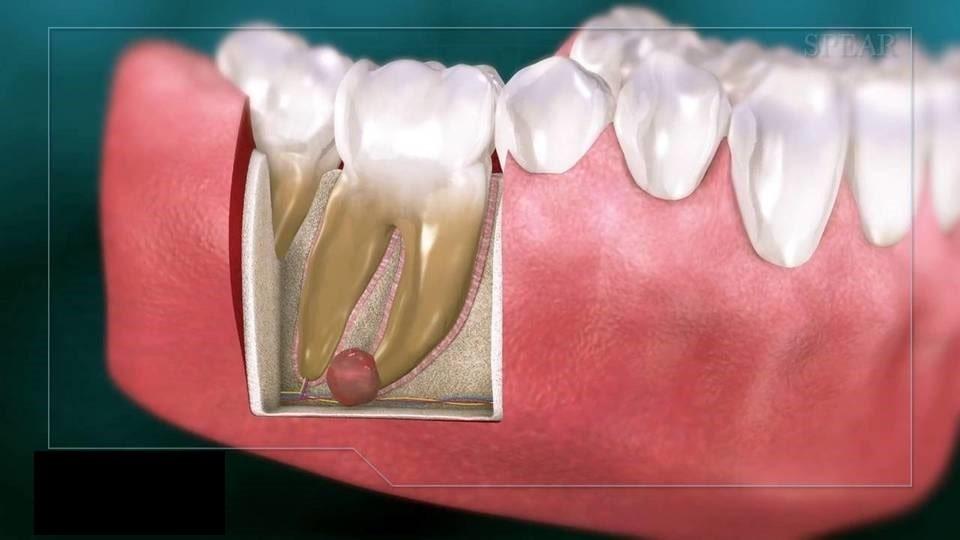 [عکس: DentalCyst-min.jpg]