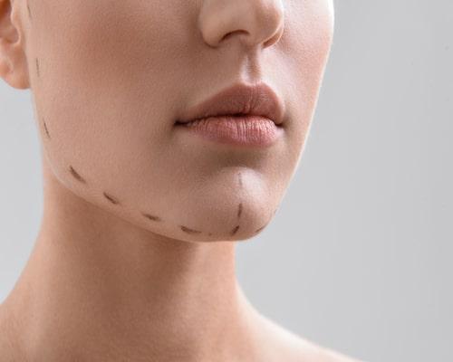 ارتودنسی-جراحی ژنیوپلاستی یا جراحی فک و چانه