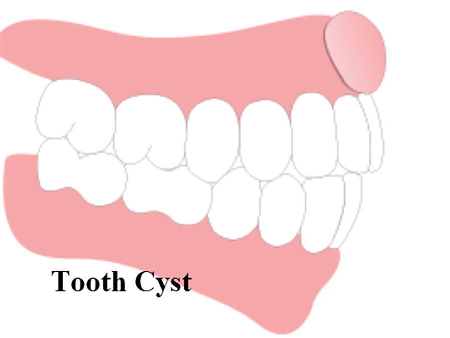 [عکس: tooth-cyst-min.jpg]