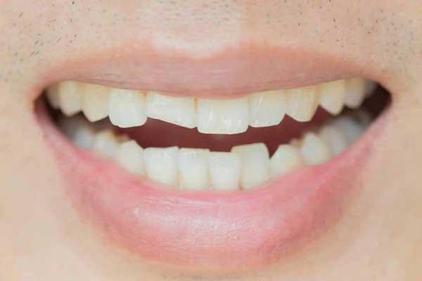 ترک های مویی دندان