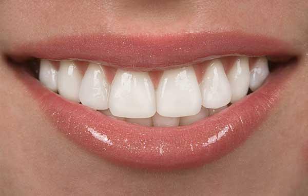 عوامل موثر در هزینه ایمپلنت دندان