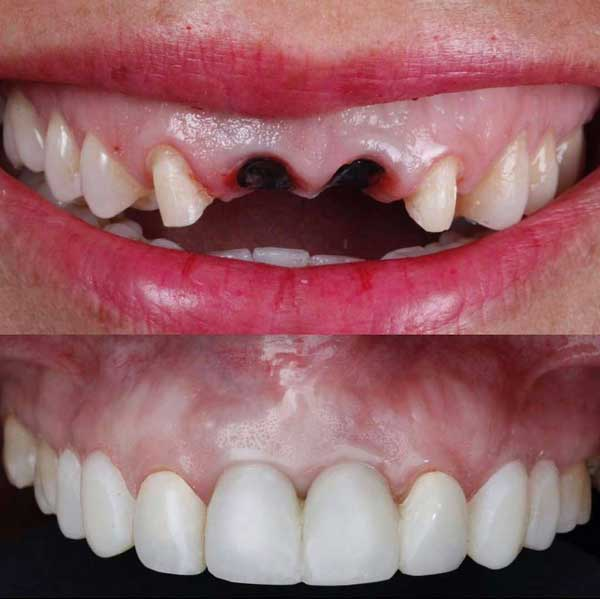 عوارض خالی بودن دندان از دست رفته چیست؟