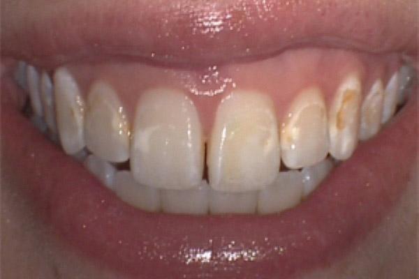 آیا براکت ارتودنسی دندانها را لک می کند؟
