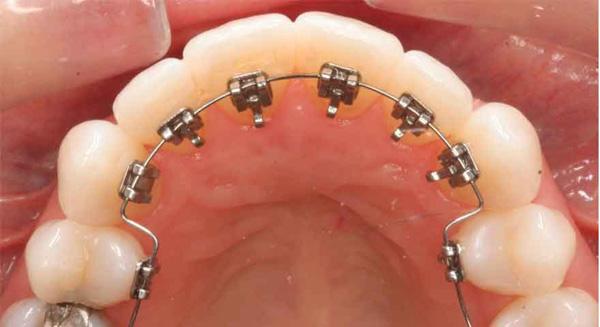 بریس پشت دندانی چیست؟