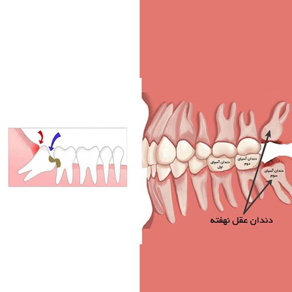 بهترین زمان مناسب کشیدن دندان عقل