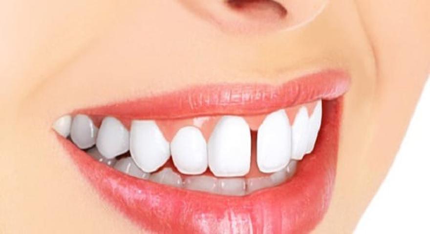 اصلاح و بستن فاصله بین دندانی بدون ارتودنسی