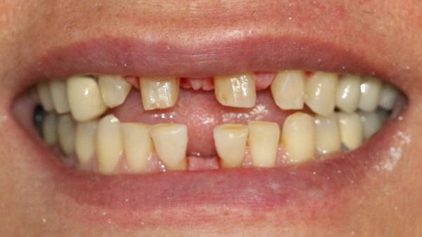 [تصویر: Correction-of-dental-spacing-without-orthodontics1.jpg]
