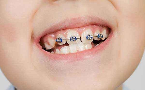 ارتودنسی تک دندان کج