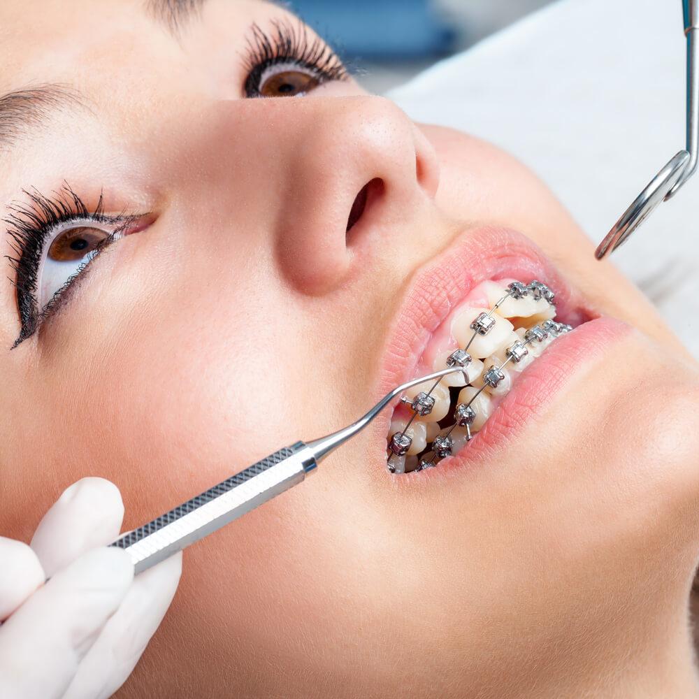عوارض کشیدن دندان در ارتودنسی