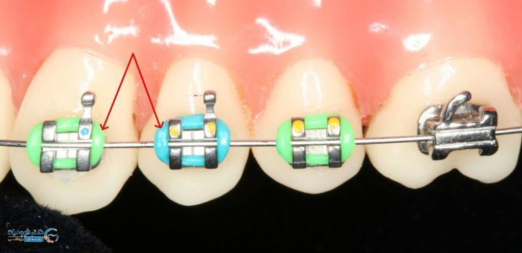 انواع تجهیزات ست ارتودنسی دندان