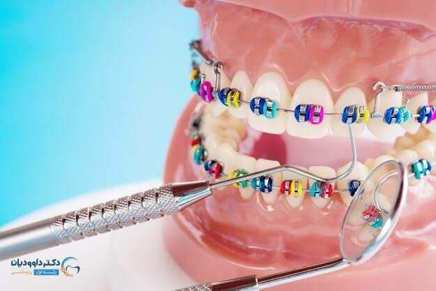 انواع مختلف ارتودنسی دندان