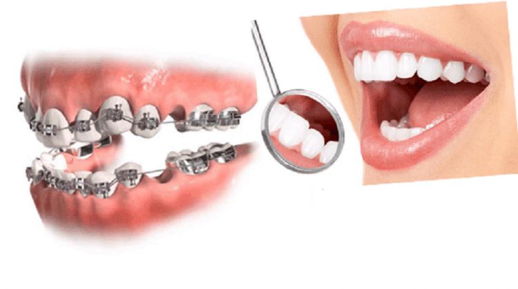 کشیدن دندان سالم در ارتودنسی