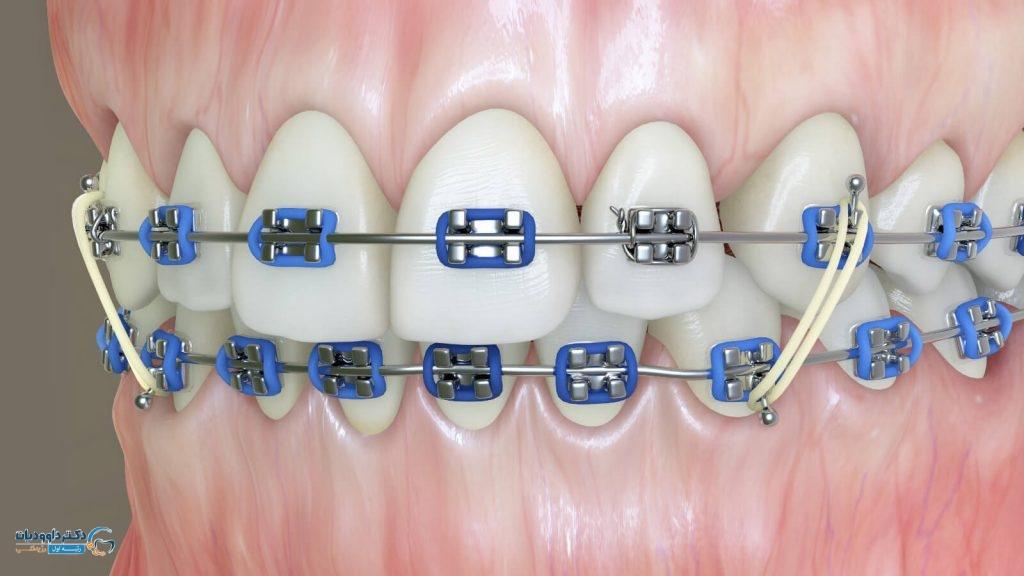 چگونگی نصب اورینگ های دندانی