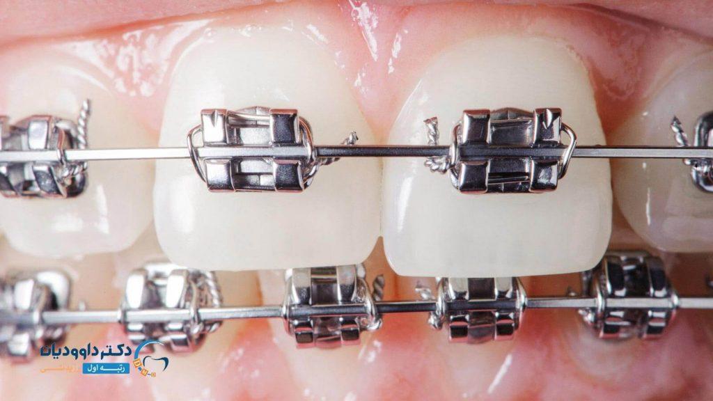 نحوه سیم کشی دندان