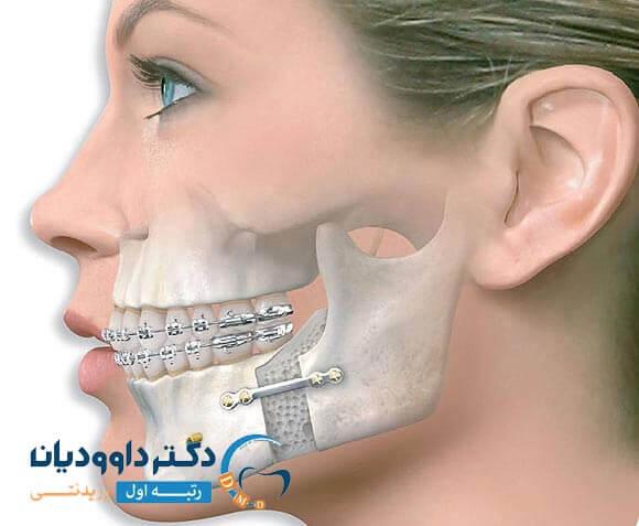 جراحی در صدا دادن فک